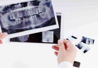 Radiologia w gabinecie dentystycznym