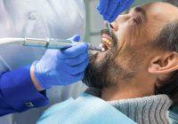 Chirurgia stomatologiczna Toruń