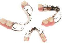 Zabiegi dentystyczne – wstawienie mostu protetycznego
