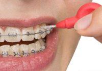 Leczenie wad zgryzu – Ortodonta Toruń